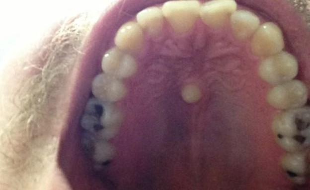 שן שצומחת במרכז הפה (צילום: mirror.co.uk)