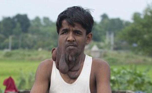 פרצוף גידול (צילום: dailymail.co.uk)