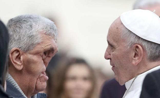 האפיפיור והאדם חצוי הפנים (צילום: dailymail.co.uk)