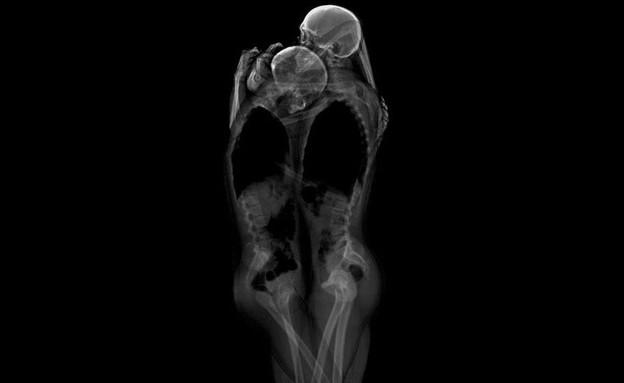 צילומי רנטגן שלד (צילום: huffingtonpost.com)