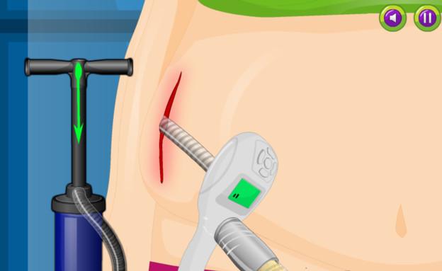 אפליקציית ניתוח פלסטיים