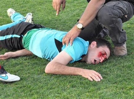 שחקן איכסל שותת דם. (צילום: מוחמד חאדר אניס, דאבל פס) (צילום: ספורט 5)