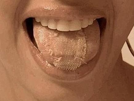 תפרה את הלשון