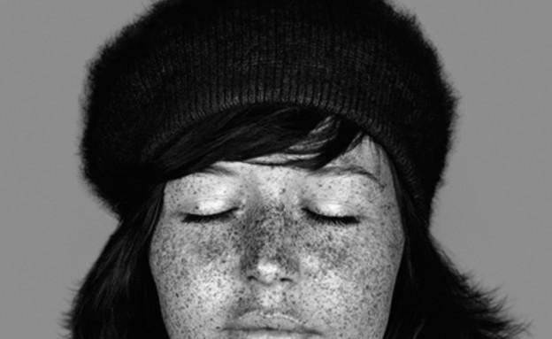נזקי עור- קארה פיליפס (צילום: cara-phillips.com)