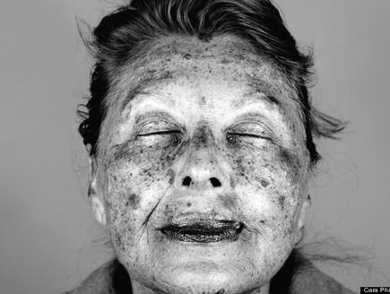 נזקי עור- קארה פיליפס