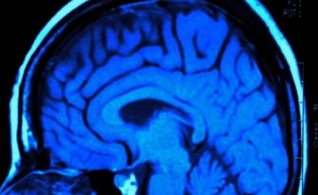 מוח במחלוקת (צילום: צילום מסך)