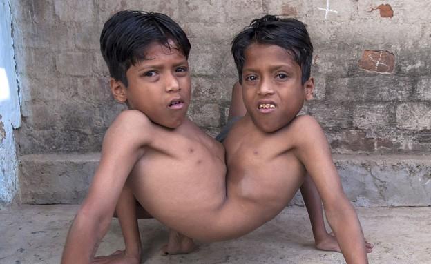תאומים סיאמיים (צילום: Barcroft India)