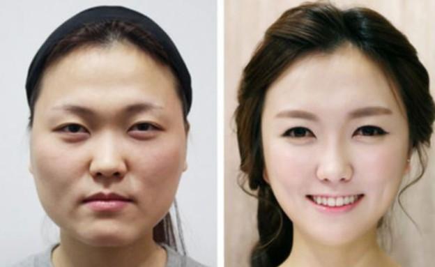 ניתוחים בדרום קוריאה (צילום: dailymail.co.uk)