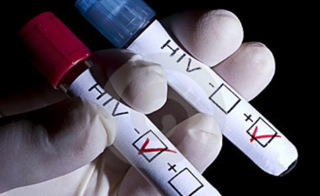 בדיקת איידס