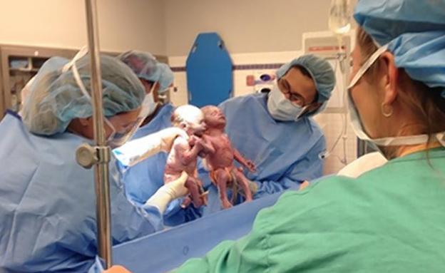 התאומות בחדר הלידה, בסוף השבוע