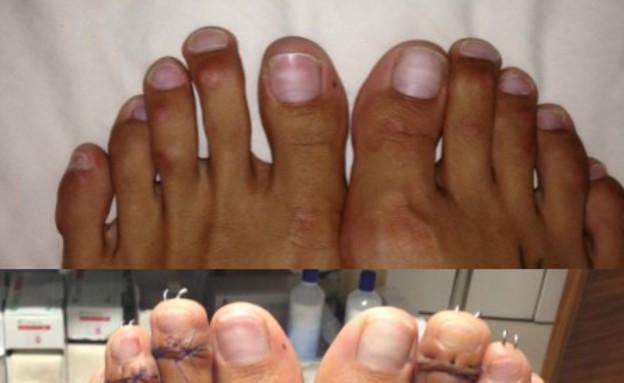 ניתוח בכף הרגל (צילום: dailymail.co.uk, noon)