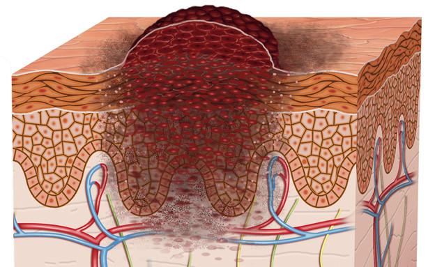 שרטוט של התפתחות מלנומה על פני העור (צילום: thinkstock)
