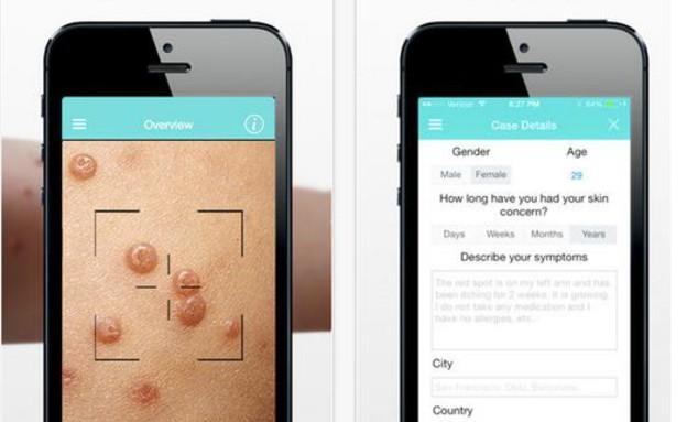 מחלת מין אפליקציה