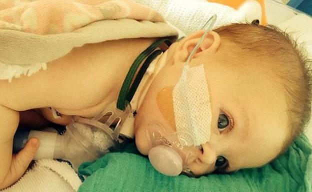 התינוקת שלא יכולה לבכות (צילום: SWNS.com)
