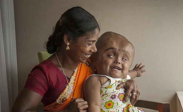 רונה ביגום מחייכת (צילום: Barcroft)