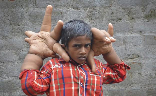 ידיים ענקיות (צילום: Barcroft India)
