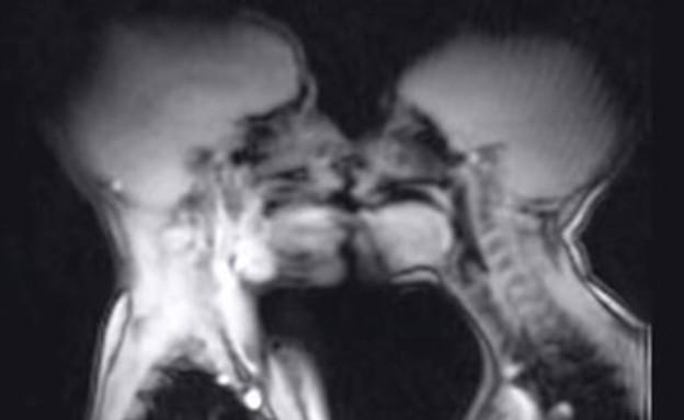 סקס MRI (צילום: יוטיוב)