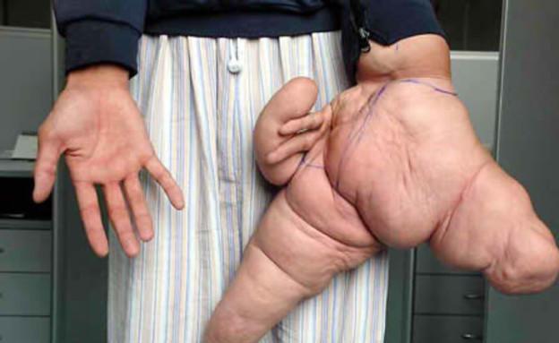 טעויות גנטיות (צילום: oddee.com)