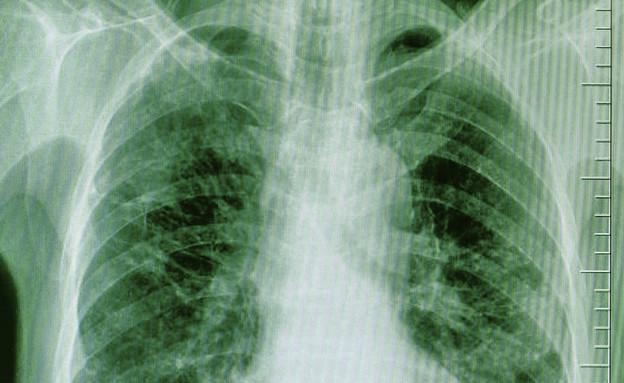 רנטגן (צילום: אימג'בנק / Thinkstock)