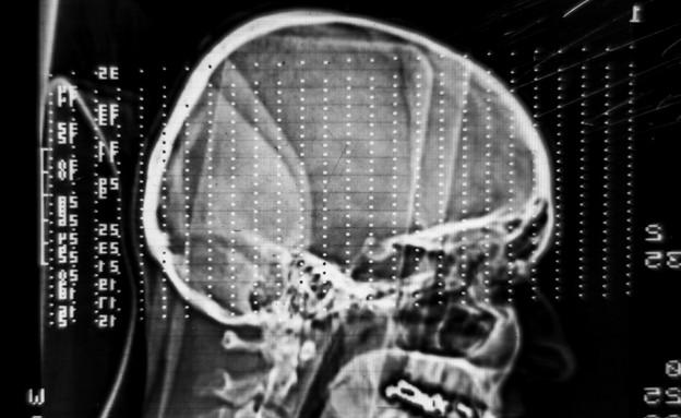 MRI (צילום: אימג'בנק / Thinkstock)