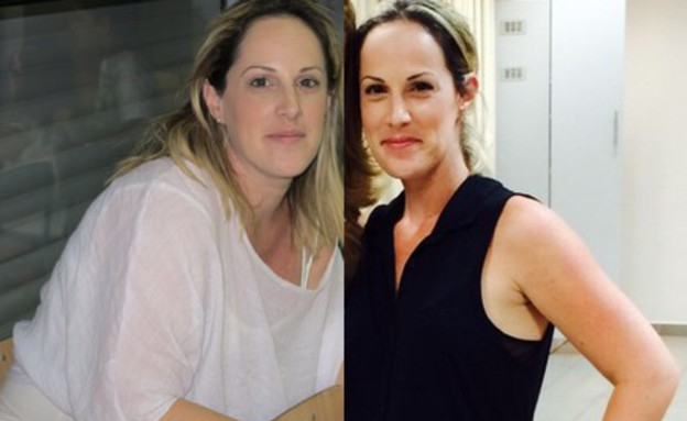 טלי מרמור לפני ואחרי (צילום: צילום ביתי)