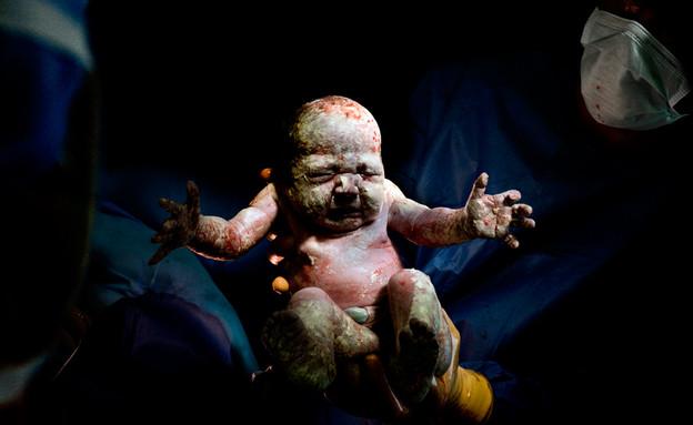 כריסטיאן ברתלו - לידה תינוק קיסרי (צילום: christianberthelot.com)