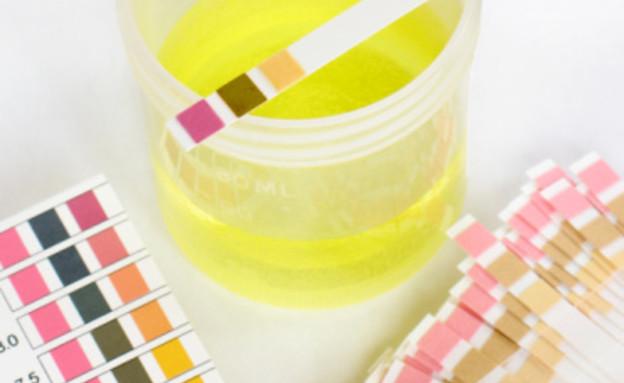 בדיקת שתן (צילום: Christina Richards, Shutterstock)