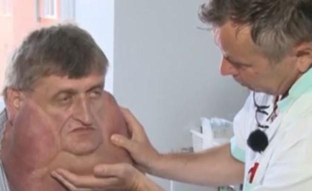 גידול בצוואר (צילום: CEN)