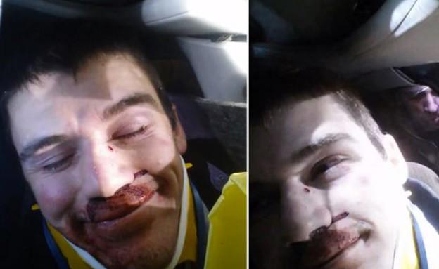אחרי תאונה (צילום: יוטיוב)