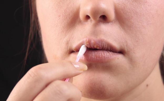 טיפול בהרפס שפתיים (צילום: אימג'בנק / Thinkstock)