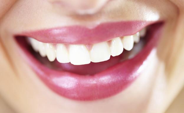 חיוך, שיניים (צילום: אימג'בנק / Thinkstock)