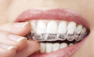 פלטה ליישור שיניים (צילום: OlgaMiltsova, Thinkstock)