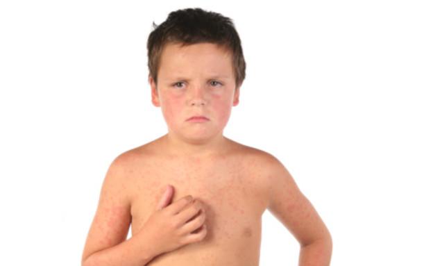 ילד מתגרד (צילום: אימג'בנק / Thinkstock)