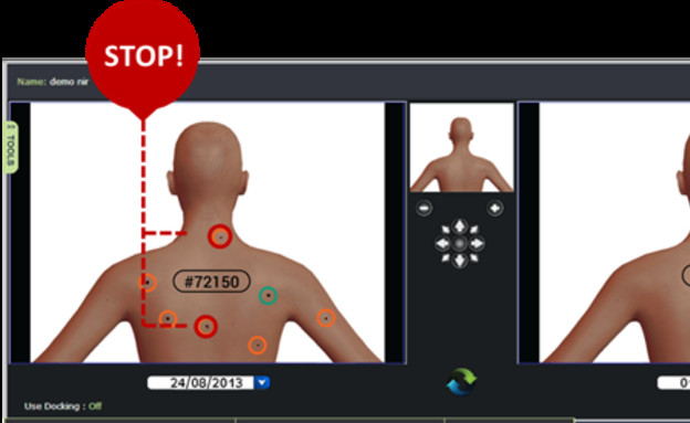 אפליקציה סרטן העור