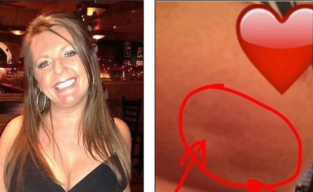 תמונה של תסמין לסרטן השד שפורסמה בפייסבוק (צילום: Facebook Lisa Royal)