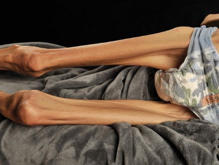 רייצ'ל פארו חולת אנורקסיה (צילום: casian)