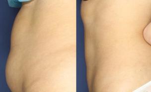 """המסת שומן בגלי רדיו - לפני ואחרי (צילום: באדיבות ד""""ר רונן גלזינגר)"""