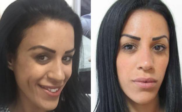 גומות חן - לפני ואחרי (צילום: באדיבות בת-אל בן שטרית)