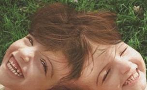 תאומות סיאמיות (צילום: Channel 5)