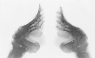 קשירת רגליים (צילום: dailymail)
