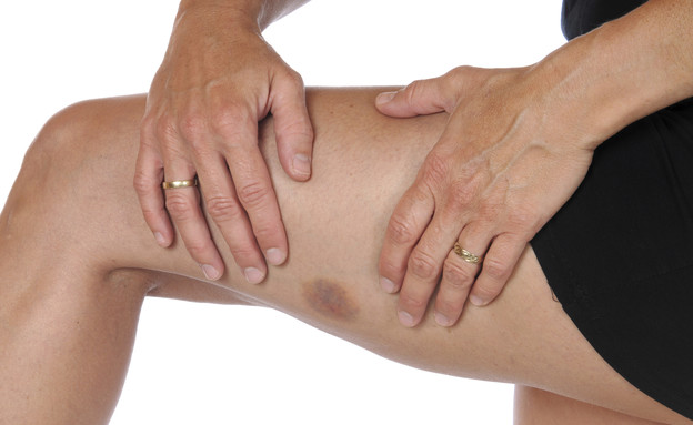 פצע (צילום: אימג'בנק / Thinkstock)