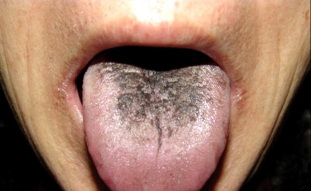 לשון שחורה (צילום: doctortipster.com)