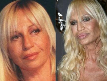 דונטלה ורסאצ'ה לפני ואחרי