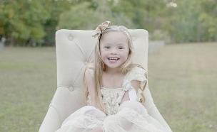 צילומי ילדות תסמונת דאון (צילום: JuleD-Photography)