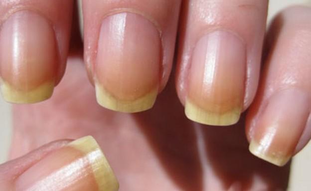 ציפורניים צהובות (צילום: www.handresearch.com)