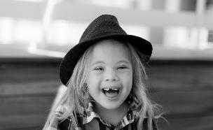 תערוכת צילומים בנושא ילדי תסמונת דאון  (צילום: ליאת לומברזו)