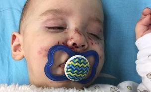 התינוק לאחר שהותקף (צילום: באדיבות המשפחה)