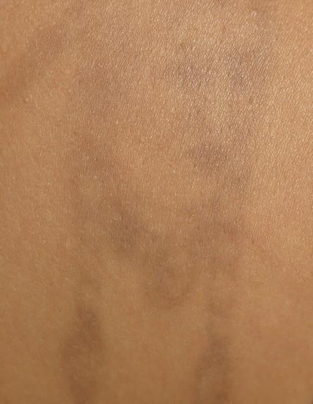 קעקוע בטיפול אמצע G (צילום: שרונה בונד מטרסו)