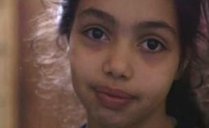 ילדה שעירה (צילום: באדיבות ערוץ 8, הוט)