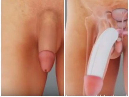 הגדלת פין (צילום: YouTube/ Dr James Elist)